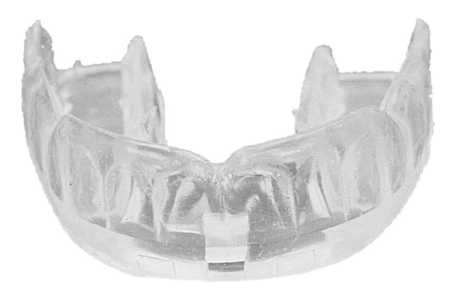 Zahnschutz Protexsmile Transparent